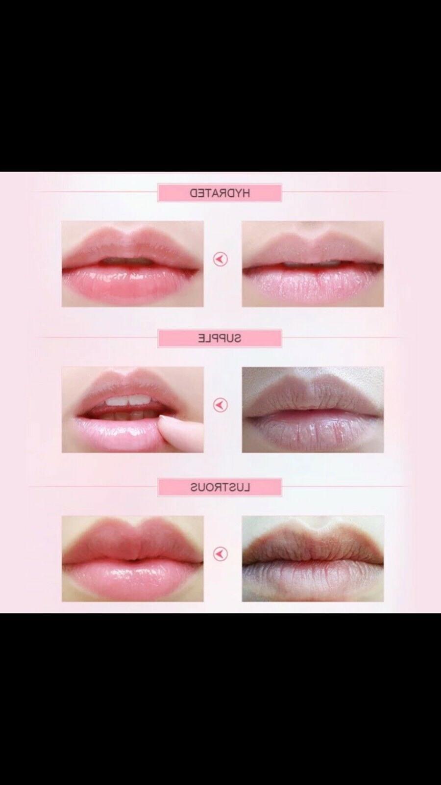 10pc 10pc Collagen Lip Combination